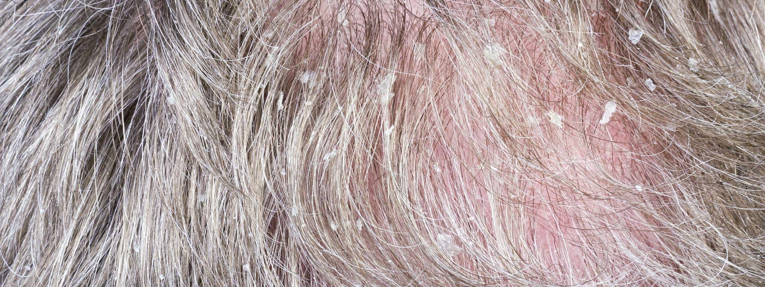 Uso di catrame di betulla da una perdita di capelli